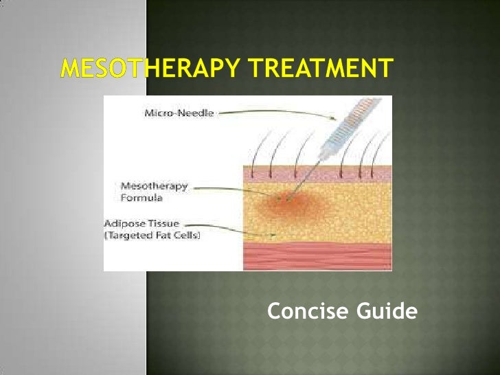Mesotherapy treatment <br />Concise Guide<br />