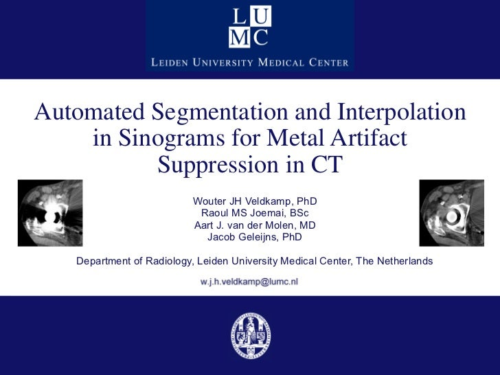 Automated Segmentation and Interpolation in Sinograms for Metal Artifact Suppression in CT Wouter JH Veldkamp, PhD Raoul M...