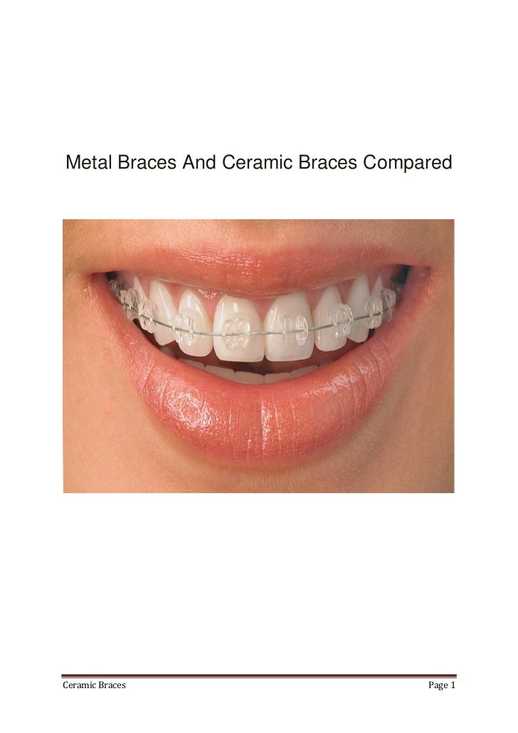 Are Ceramic Braces Really Good