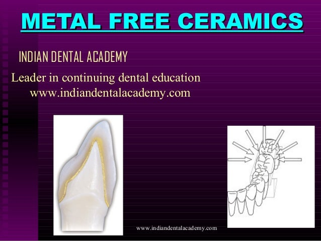 METAL FREE CERAMICS INDIAN DENTAL ACADEMY Leader in continuing dental education www.indiandentalacademy.com  www.indianden...