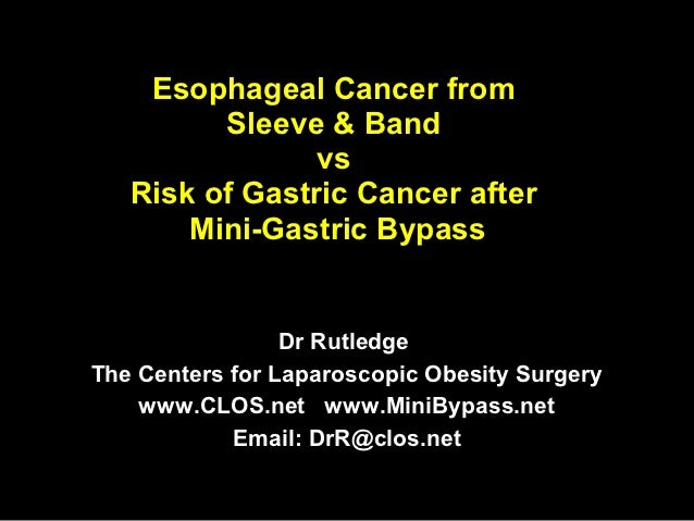 Esophageal Cancer from         Sleeve & Band                vs   Risk of Gastric Cancer after       Mini-Gastric Bypass   ...
