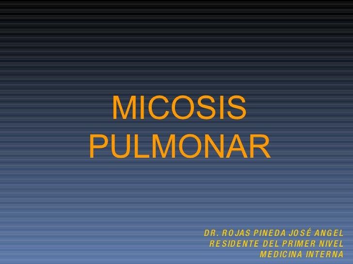 MICOSIS PULMONAR DR. ROJAS PINEDA JOSÉ ANGEL RESIDENTE DEL PRIMER NIVEL MEDICINA INTERNA