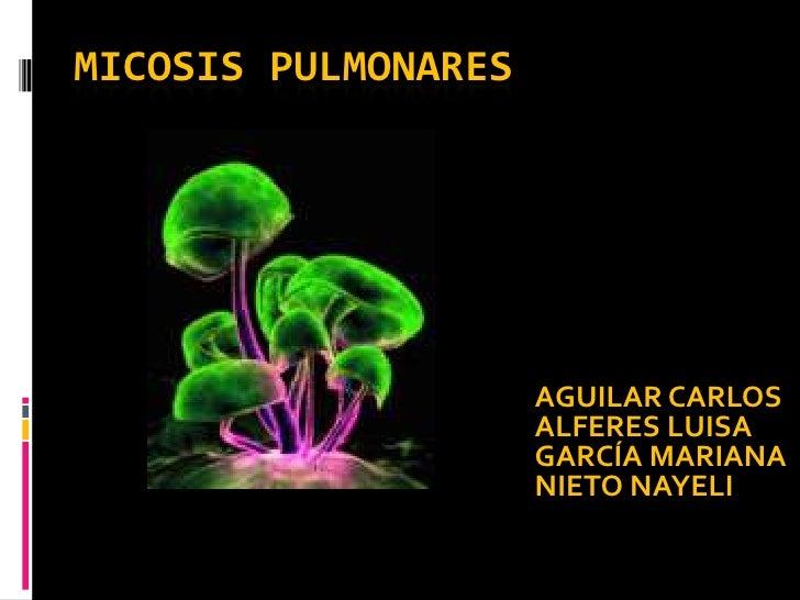 MICOSIS PULMONARES<br />AGUILAR CARLOS<br />ALFERES LUISA<br />GARCÍA MARIANA<br />NIETO NAYELI<br />