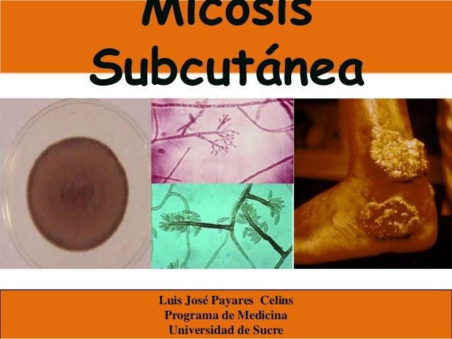 MicosisSubcutánea  Luis José Payares Celins   Programa de Medicina    Universidad de Sucre