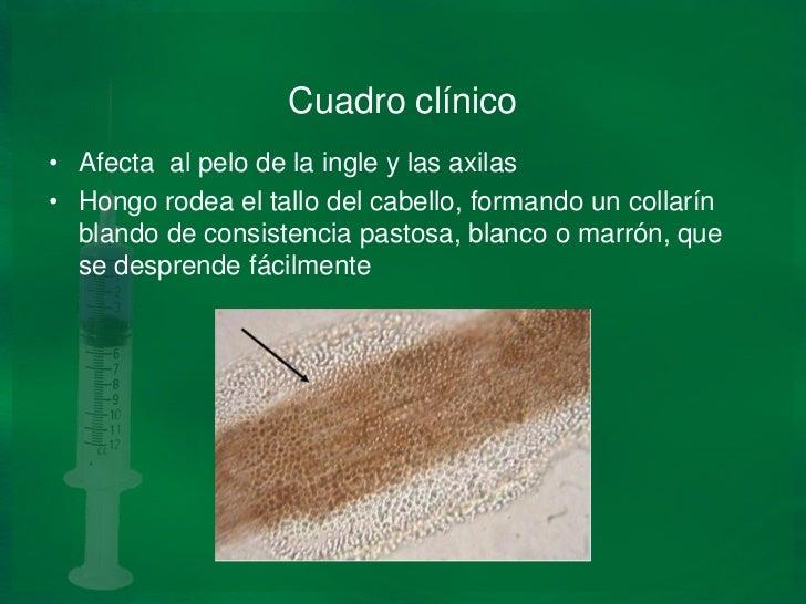 Todas las fases del hongo de las uñas en los pies