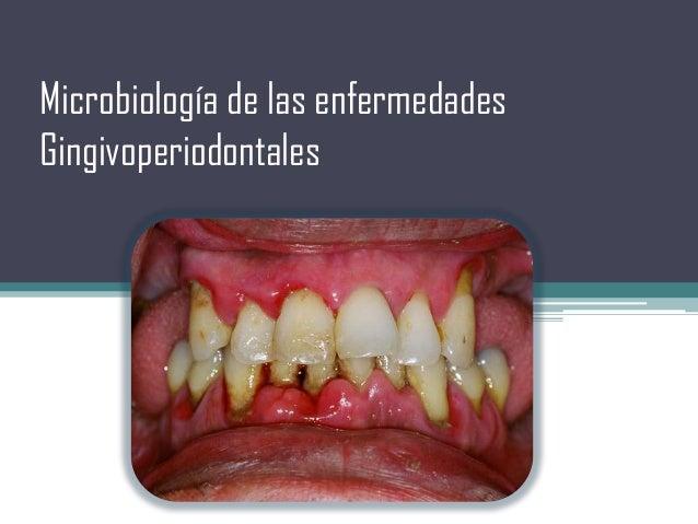 Microbiología de las enfermedades Gingivoperiodontales