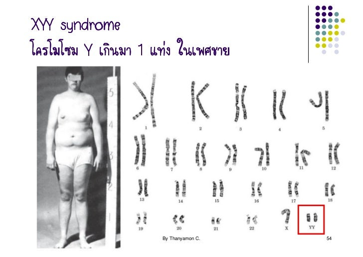an overview of the genetic disorder klinefelters syndrome Klinefelter syndrome (ks): overview nichdnihgov eunice  article/klinefelters-syndrome-xxy  hhv8) kartagener syndrome , a genetic disorder.