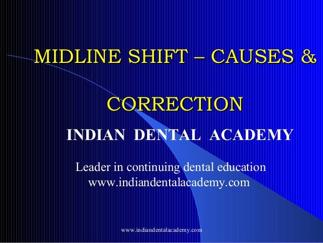 MIDLINE SHIFT – CAUSES & CORRECTION INDIAN DENTAL ACADEMY Leader in continuing dental education www.indiandentalacademy.co...