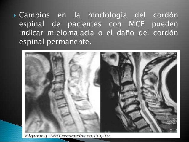 Los ejercicios a los dolores en la espalda que dan en el pie