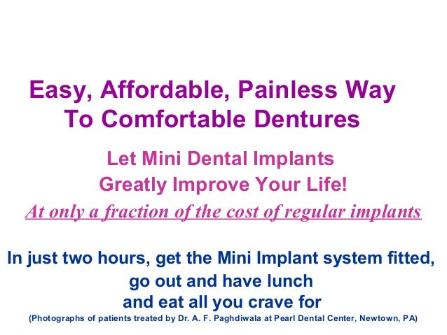 Easy, Affordable, Painless Way To Comfortable Dentures Let Mini Dental Implants Greatly Improve Your Life! At only a fract...