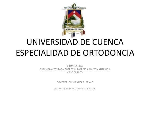 UNIVERSIDAD DE CUENCAESPECIALIDAD DE ORTODONCIA                         BIOMECÁNICA     MINIMPLANTES PARA CORREGIR MORDIDA...