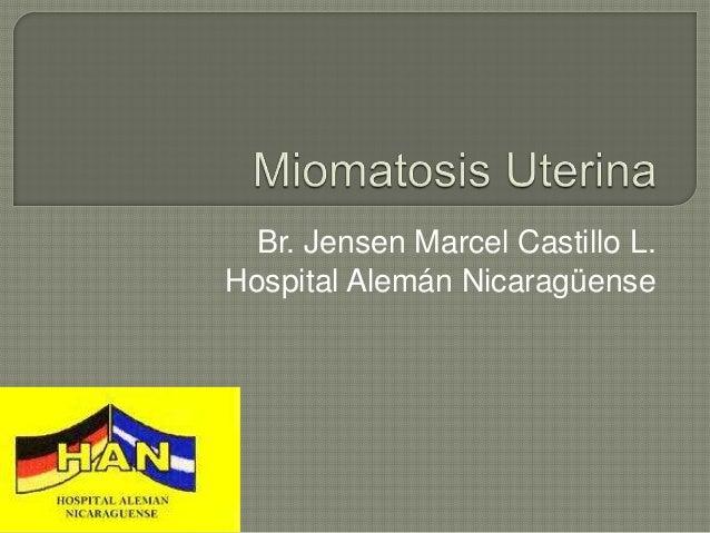 Br. Jensen Marcel Castillo L.Hospital Alemán Nicaragüense