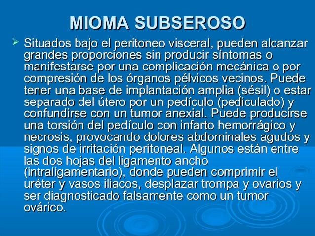 Tipos de Mioma | mioma Subseroso, Mioma Intramural e mioma