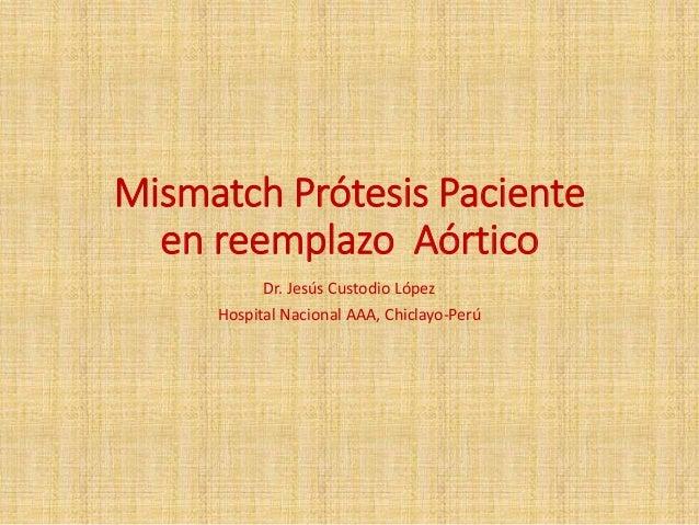 MISMATCH PRÓTESIS PACIENTEEN REEMPLAZO AÓRTICODr. Jesús Custodio LópezHospital NacionalAAA, Chiclayo-Perú