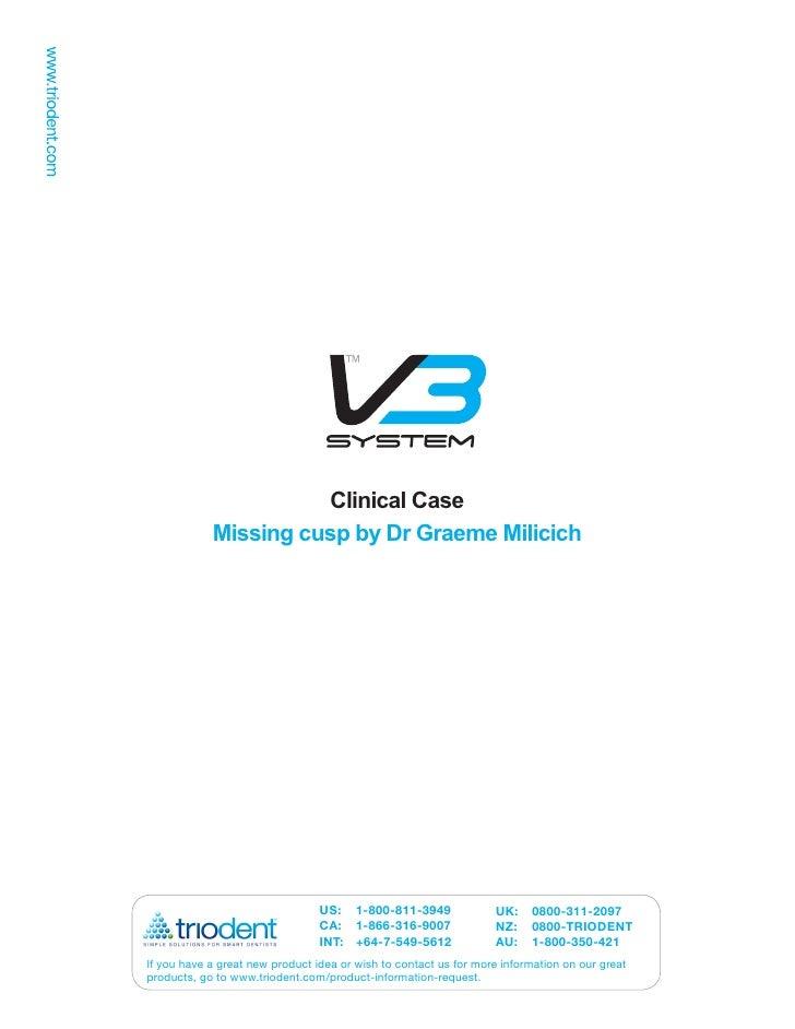 Missing Cusp by Dr Graeme  Milicich