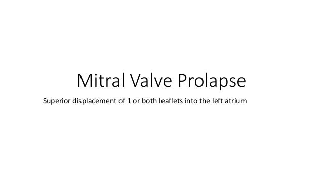 Mitral Valve Prolapse Superior displacement of 1 or both leaflets into the left atrium