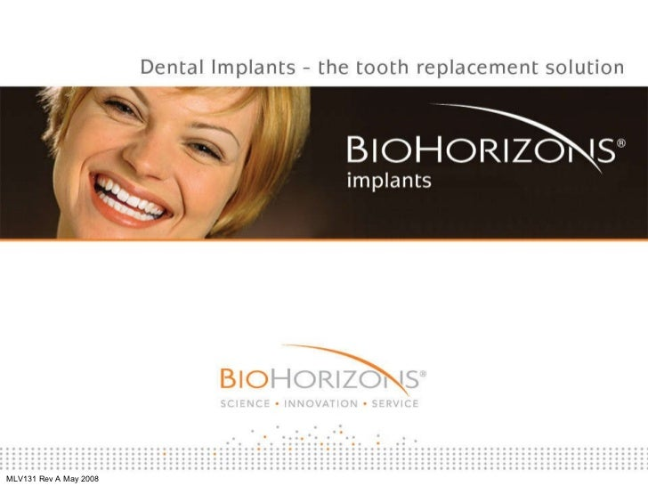 Dental Implants - The Tooth Replacement Solution