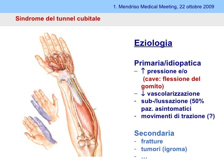 Sindrome del tunnel cubitale 1. Mendriso Medical Meeting, 22 ottobre 2009 <ul><ul><li>Eziologia </li></ul></ul><ul><ul><li...
