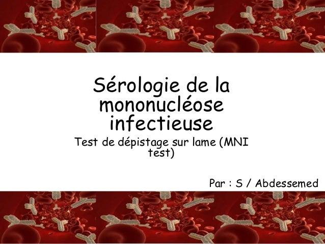S/A RSérologie de la mononucléose infectieuse Test de dépistage sur lame (MNI test) Par : S / Abdessemed
