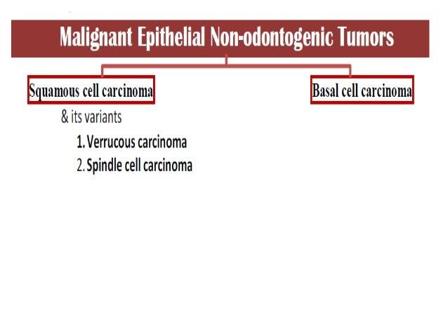 malignant epithelial non odontogenic neoplasm