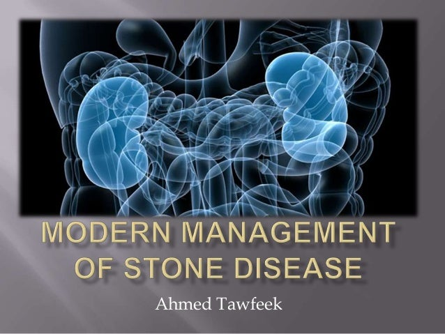 Modern management of stone disease