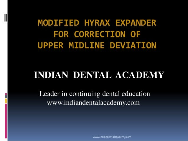 Modified hyrex expander for correction of upper mid line deviation /certified fixed orthodontic courses by Indian dental academy