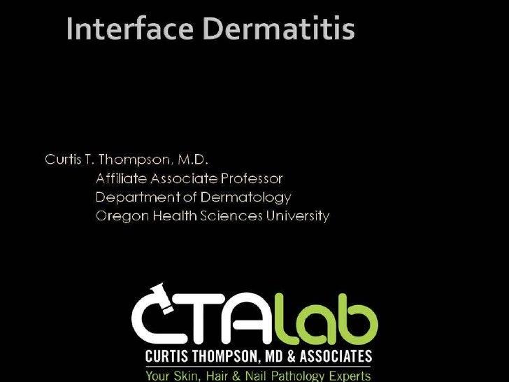 C. Thompson - Lichenoid Dermatitides