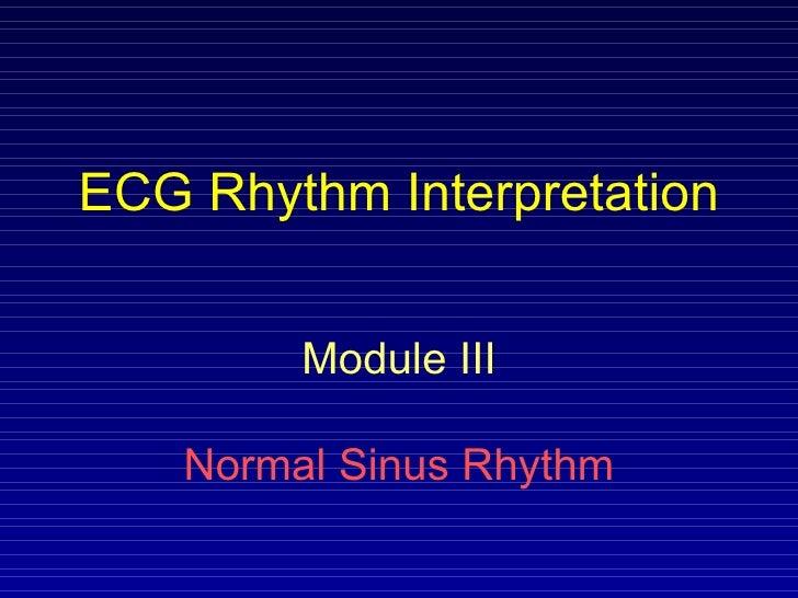 Normal Sinus Rhythem