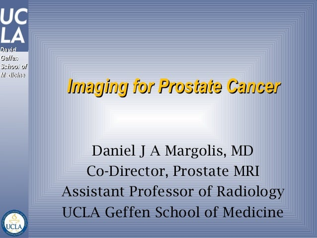 DavidDavidGeffenGeffenSchool ofSchool ofMedicineMedicine            Imaging for Prostate Cancer                Daniel J A ...