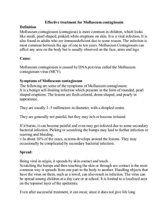 Effective treatment for Molluscum contagiosum Definition Molluscum contagiosum (contagiosa) is more common in children, wh...