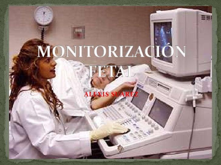 Monirotizacion fetal
