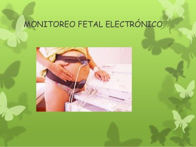 MONITOREO FETAL ELECTRÓNICO