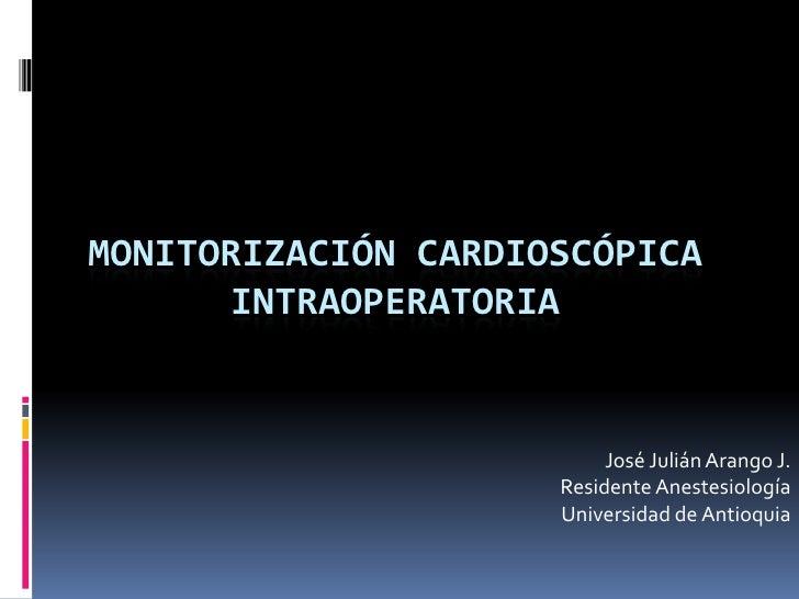 MonitorizacióN ElectrocardiográFica