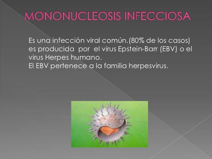 MONONUCLEOSIS INFECCIOSA<br />Es una infección viral común.(80% de los casos) es producida  por elvirus Epstein-Barr(EB...