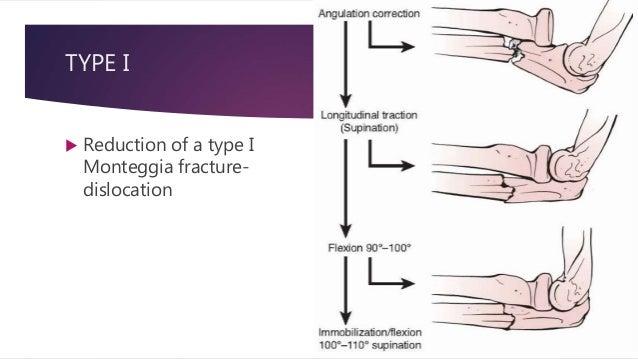 Monteggia fracture dislocation in chldren