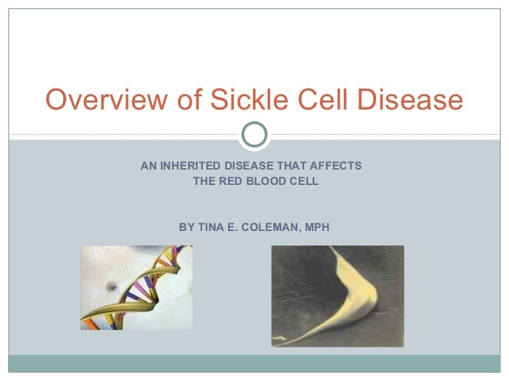 AN INHERITED DISEASE THAT AFFECTS  THE RED BLOOD CELL BY TINA E. COLEMAN, MPH Overview of Sickle Cell Disease