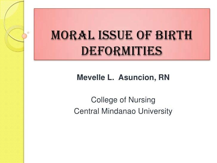Moral Issue of Birth   Deformities   Mevelle L. Asuncion, RN       College of Nursing   Central Mindanao University