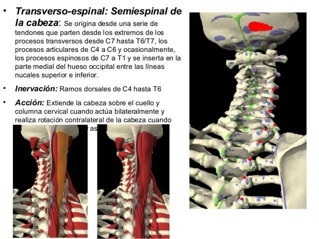 • Transverso-espinal: Semiespinal de la cabeza: Se origina desde una serie de tendones que parten desde los extremos de lo...