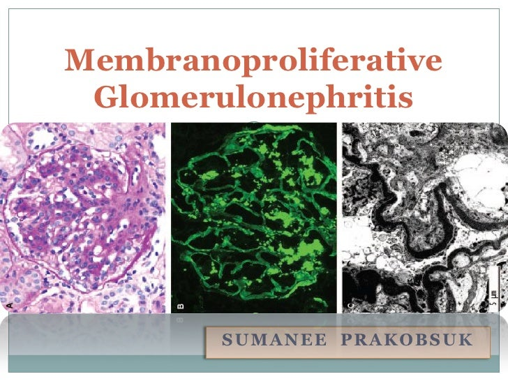 Membranoproliferative Glomerulonephritis        SUMANEE PRAKOBSUK