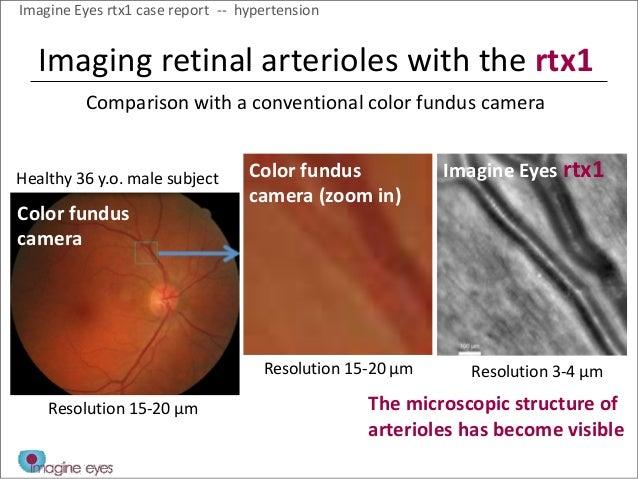 Fundus Camera Comparison Color Fundus Camera Color