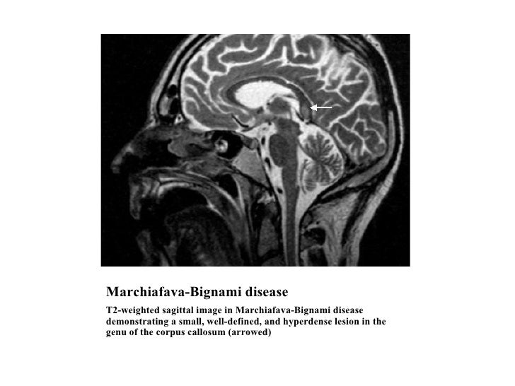 Marchiafava-Bignami disease <ul><li>T2-weighted sagittal image in Marchiafava-Bignami disease demonstrating a small, well-...
