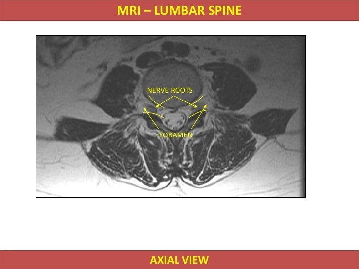 Anatomy of the foot and ankle  MRI  IMAIOS