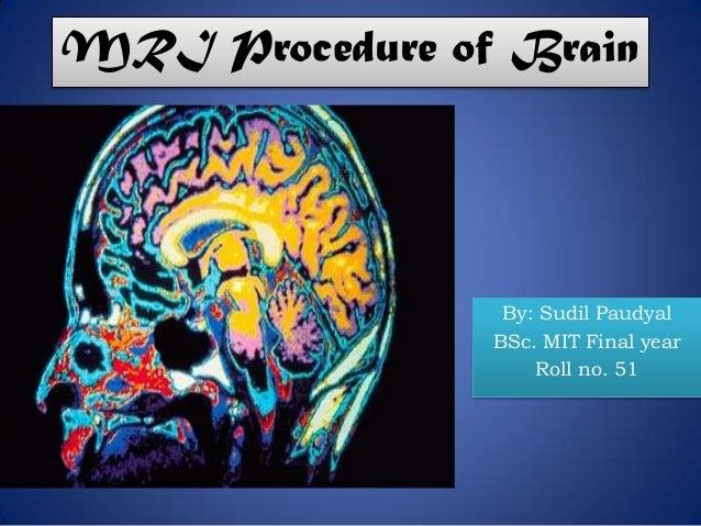 MRI Procedure of Brain By: Sudil Paudyal BSc. MIT Final year Roll no. 51