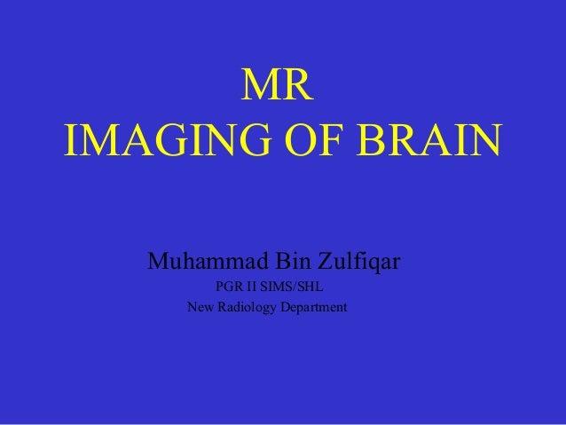 MR IMAGING OF BRAIN Muhammad Bin Zulfiqar PGR II SIMS/SHL New Radiology Department