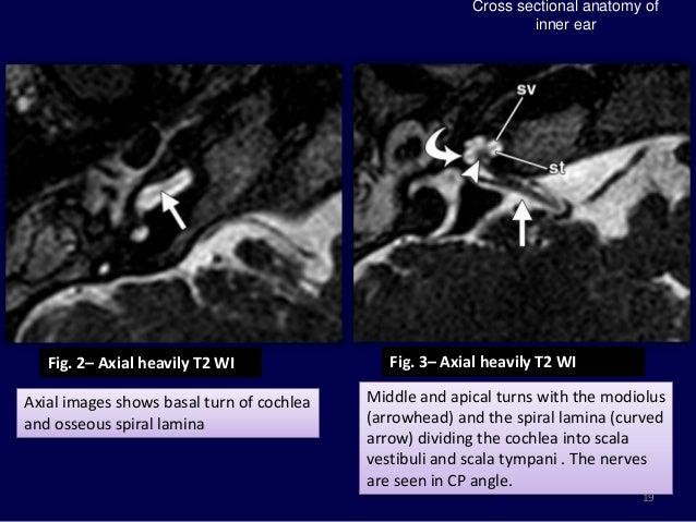 Ear sinus anatomy