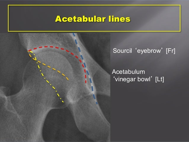 Acetabular Dysplasia  Stanford Childrens Health