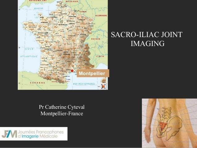 SACRO-ILIAC JOINT IMAGING  Montpellier  Pr Catherine Cyteval Montpellier-France