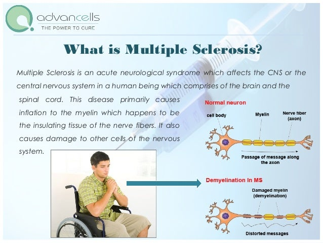 Adult stem cells and multiple sclerosis