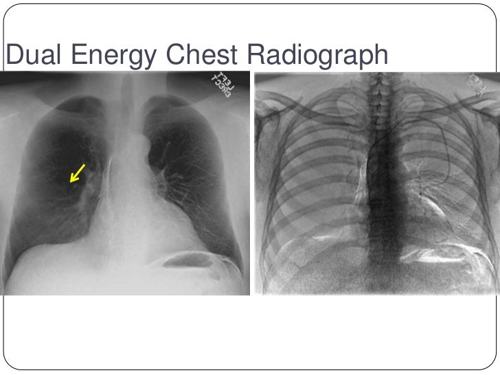 tomosynthesis chest imaging Abstract = digital tomosynthesis is a relatively novel imaging modality using limited angle tomography to provide 3d imaging the purpose of this review is to compare the sensitivity of.