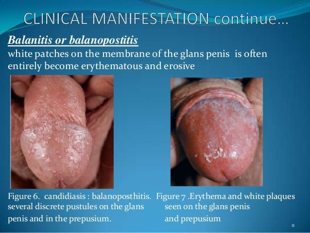 balanitis pictures male